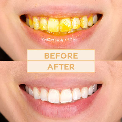 How to Whiten Your Teeth Instantly With Turmeric