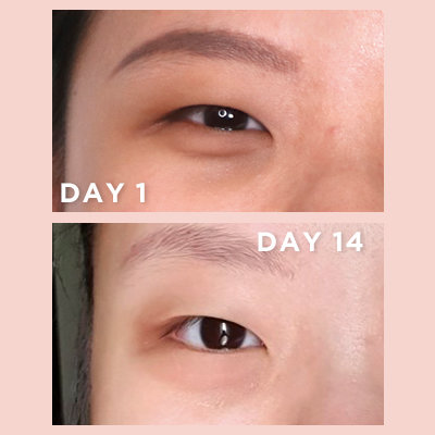 Can Vitamin C Lighten Under-Eye Circles? We Tried It