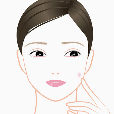 A-to-Zits: A Comprehensive Guide to Acne