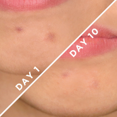 Apparently, This Gel Lightens Dark Spots and Pits in Just 10 Days