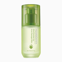 Aloderma aloe evenizer for acne damaged skin
