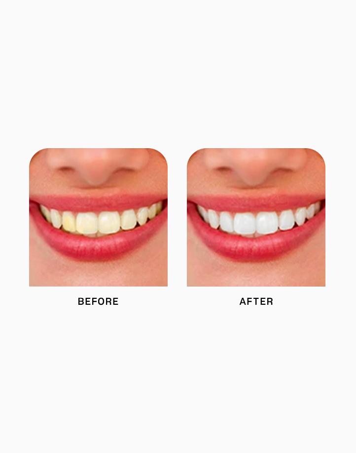 Teeth Whitening Mousse by Lanbena